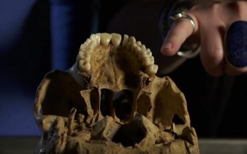 Perfect medieval teeth