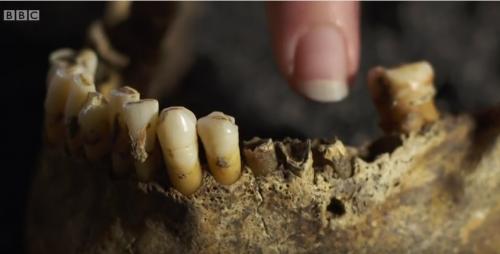 Tudor era teeth